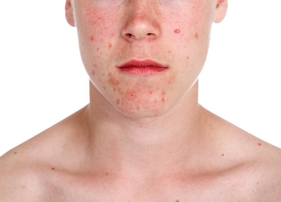 how do i stop my spots spreading skin geeks blogskin geeks blog